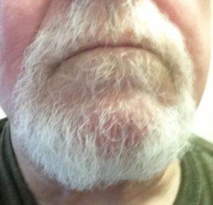 It's a beard, by damn!